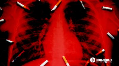 20211017141024-tabaquismo-cuba-31-mayo-dia-mundial-580x321.png